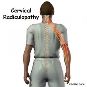Dolor cervical y la Quiropractica