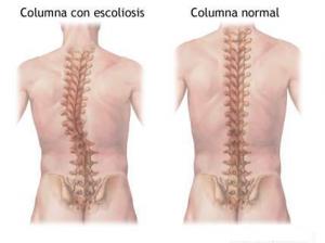 Escoliosis y Quiropráctica