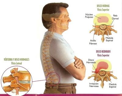 Hernia Discal y la Quiropráctica