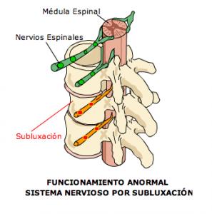 subluxacion vertebral